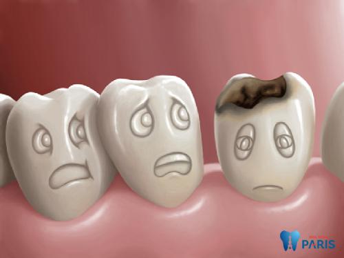 7 Nguyên nhân gây bệnh sâu răng NGUY HIỂM bạn cần LƯU Ý 1