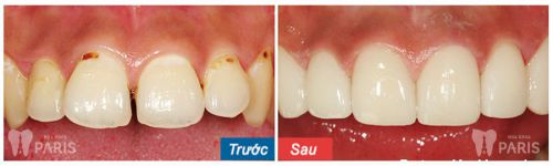 Đau răng cửa 4