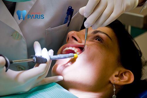 Đau răng cửa 2