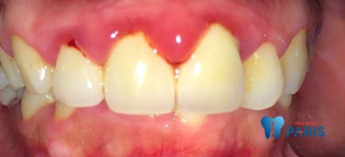 Đau răng cửa là tình trạng răng miệng rất phổ biến