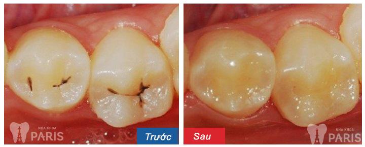 Trám răng là giải pháp trị sâu răng, khắc phục ê buốt răng sau sinh hiệu quả