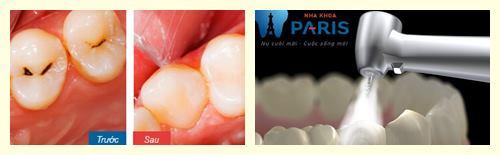 Sâu răng khi đang mang thai và cách khắc phục hiệu quả