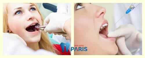 """10 Cách giảm đau khi mọc răng khôn """"Tại Nhà"""" Hiệu Quả Tận Gốc 9"""