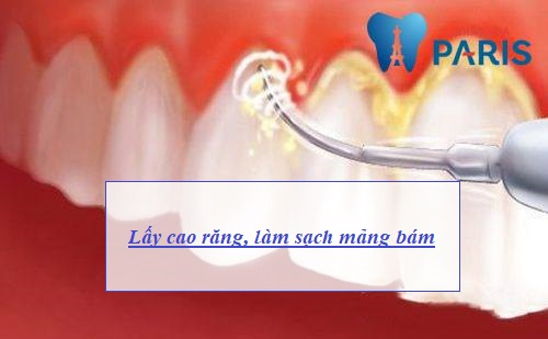 Nướu răng hay bị chảy máu - Nguyên nhân & Cách điều trị DỨT ĐIỂM 3