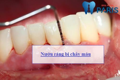 Nướu răng hay bị chảy máu - Nguyên nhân & Cách điều trị DỨT ĐIỂM 1