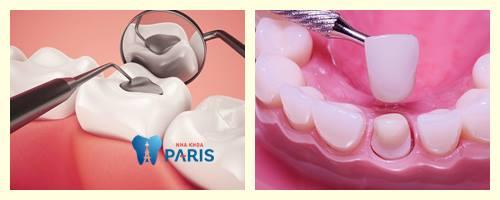 Ê buốt chân răng - Nguyên Nhân & Cách chữa AN TOÀN & HIỆU QUẢ 3