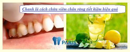 Cách chữa viêm chân răng bằng chanh và muối