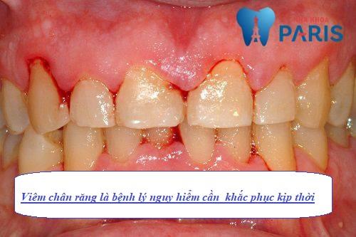 Bệnh Viêm chân răng là gì?