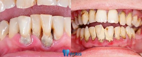 Top 4 cách khắc phục răng đau và lung lay bạn cần biết 2