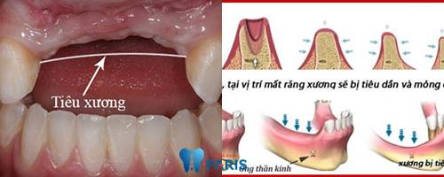 Top 4 cách khắc phục răng đau và lung lay bạn cần biết 4