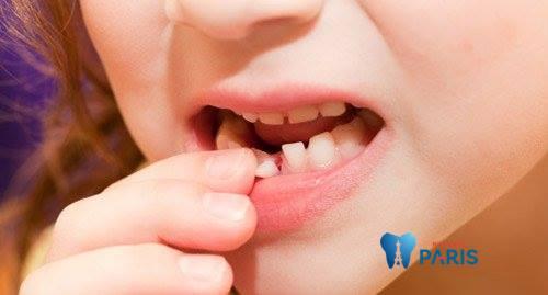 Top 4 cách khắc phục răng đau và lung lay bạn cần biết 1