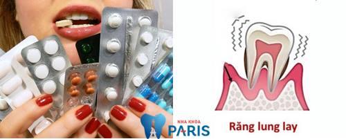 Chia sẻ răng lung lay uống thuốc gì để mang lại hiệu quả? 2
