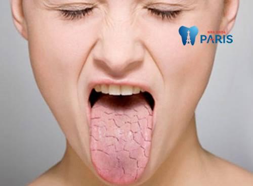 Nguyên nhân và cách khắc phục dứt điểm bệnh khô miệng 1