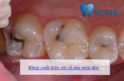 Dấu hiệu nhận biết sâu răng giai đoạn 2
