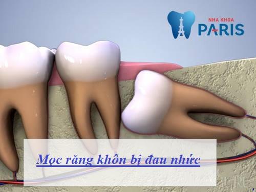 Nguyên nhân mọc răng khôn bị đau & Cách khắc phục TRIỆT ĐỂ 1
