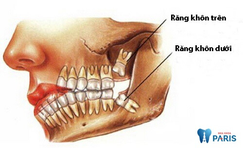 Nhổ răng khôn hàm dưới có nguy hiểm không? [Bác sĩ tư vấn] 1
