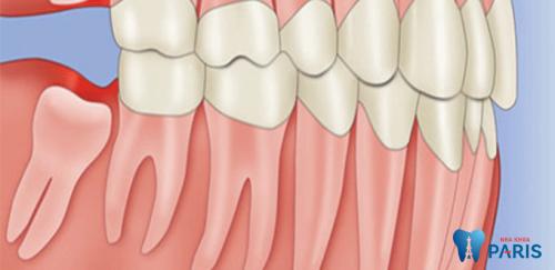Nhổ răng khôn hàm dưới có nguy hiểm không? [Bác sĩ tư vấn] 3