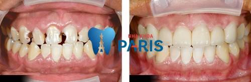 Răng cửa bị sâu - Nguyên nhân & Cách khắc phục DỨT ĐIỂM 3