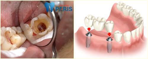 Răng hàm bị sâu có nên nhổ đi không? [Chuyên gia tư vấn] 3