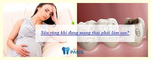 Sâu răng khi đang mang thai - Nguyên nhân và cách khắc phục