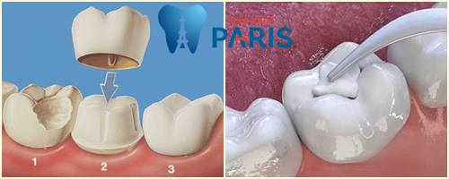 Cách bắt sâu răng bằng lá tía tô có HIỆU QUẢ & trị DỨT ĐIỂM không? 4