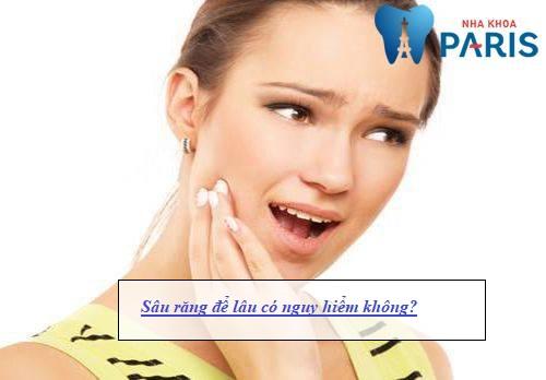 Sâu răng để lâu có nguy hiểm không? [Giải đáp từ chuyên gia] 1