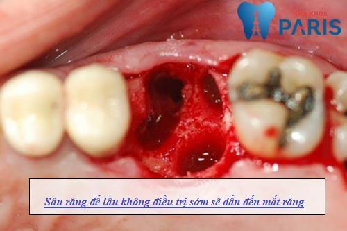 Sâu răng để lâu có nguy hiểm không? [Giải đáp từ chuyên gia] 2