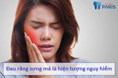 Đau răng sưng má là hiện tượng nguy hiểm đối với sức khỏe răng miệng