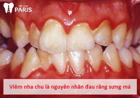 Đau răng sưng má cũng có thể do bệnh lý viêm nha chu gây nên