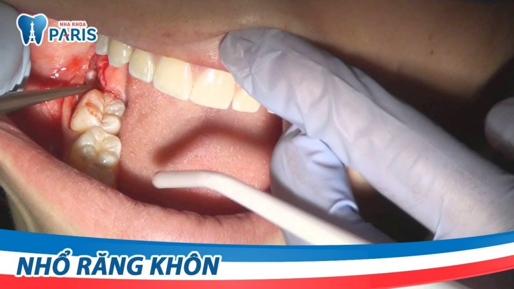 Công nghệ nhổ răng khôn siêu âm không đau