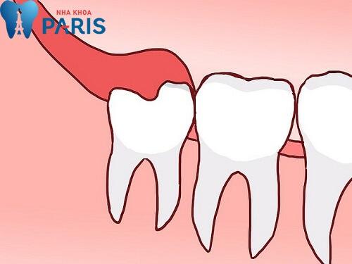 Sưng nướu răng trong cùng thường do mọc răng khôn