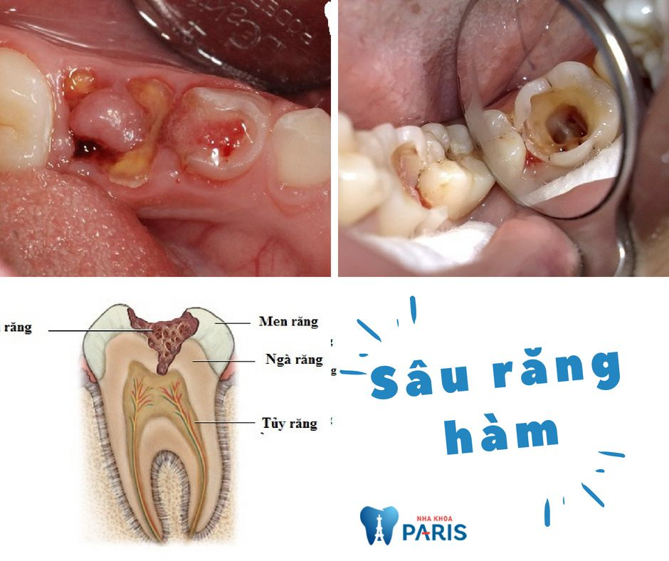 Sâu răng hàm - Dấu hiệu & Cách Chữa Trị AN TOÀN & HIỆU QUẢ 1