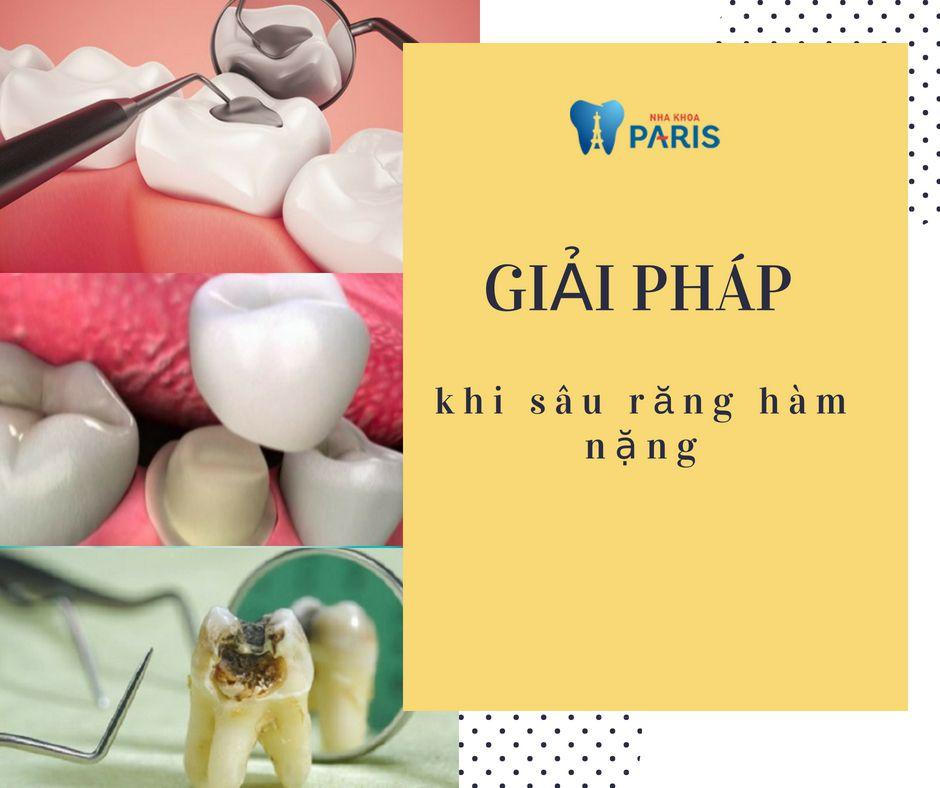 Sâu răng hàm - Dấu hiệu & Cách Chữa Trị AN TOÀN & HIỆU QUẢ 3