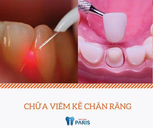 Nguyên nhân và cách chữa trị triệt để bệnh viêm kẽ chân răng