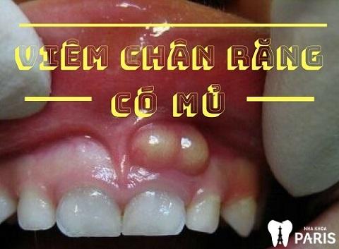 Viêm chân răng có mủ là bệnh lý nguy hiểm, ảnh hưởng tới sức khỏe răng miệng