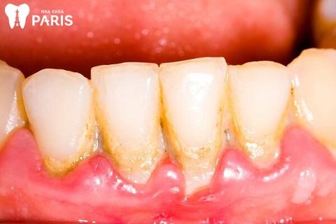 Cao răng, mảng bám là nguyên nhân dẫn đến viêm chân răng có mủ