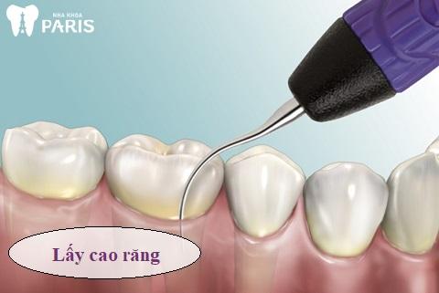Lấy cao răng là giải pháp loại bỏ vi khuẩn gây viêm nhiễm tốt nhất