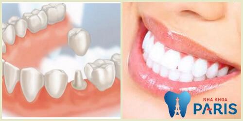 Mẻ răng hàm có sao không? Cách khắc phục cho răng hàm bị mẻ 3
