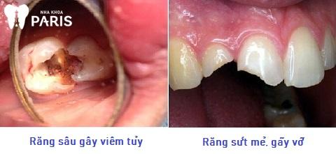 Các nguyên nhân khiến đau răng buốt lên đầu