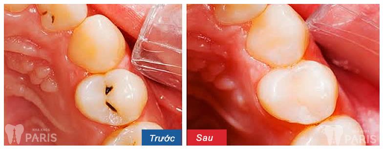 Bọc răng sứ khắc phục tình trạng sâu răng gây viêm tủy hiệu quả