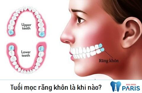 Tuổi mọc răng khôn là khi nào - thắc mắc chung của nhiều người