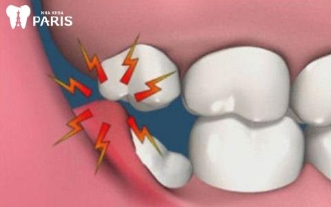 Răng khôn mọc lệch gây nhiều hậu quả nghiêm trọng