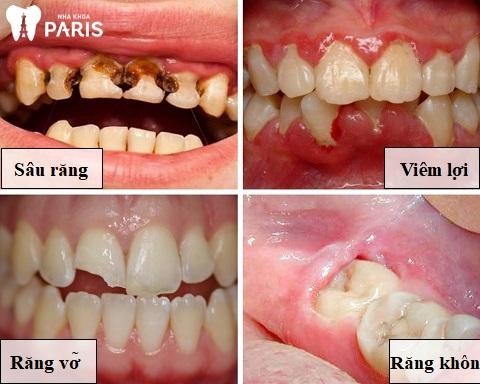 Một số bệnh lý nguy hiểm có thể dẫn đến đau nhức răng
