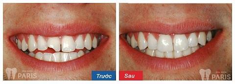 Khi bị đau răng do chấn thương, có thể áp dụng hàn trám hoặc bọc răng sứ