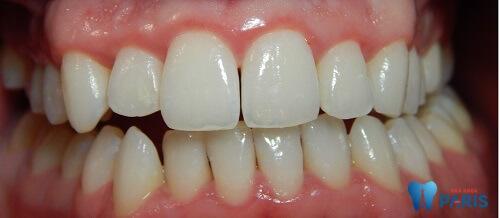 Nhận biết bệnh viêm quanh chân răng và cách điều trị 1