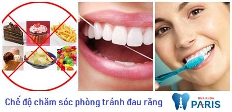 Chăm sóc răng miệng là cách giúp bạn thoát khỏi lo lắng đau răng uống thuốc gì?