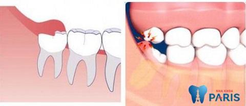 Khi nào cần phải nhổ răng khôn?