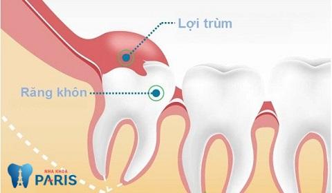 Có nhất thiết phải nhổ răng khôn không là thắc mắc của nhiều người