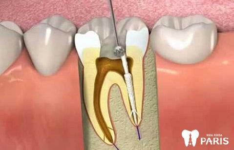 Lấy tủy răng là việc làm cần thiết để bảo vệ sức khỏe răng miệng