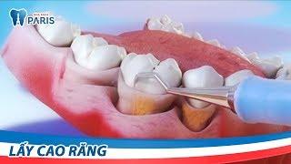 Làm gì khi bị sưng nướu răng - lấy cao răng